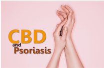 research on how CBD works with psoriasis